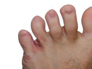 Hardnekkige voetschimmel behandelen | Schimmelnagelspecialist