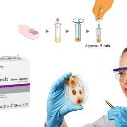FunghiCheck schimmelangel test | Schimmelnagelspecialist