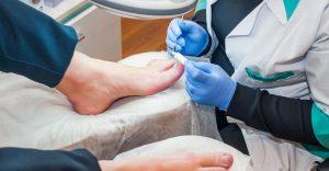 tips voor behandelen van schimmelnagels ofwel kalknagels